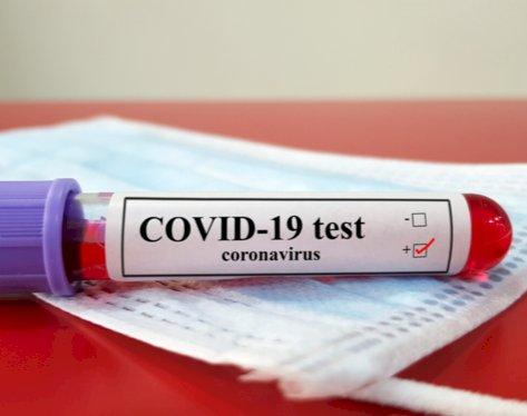 झारखंड: गोड्डा में कोरोना रिकार्ड 334 पॉजिटिव मिले, 248 जेल के कैदी, सीएम हाउस के भी 22 संक्रमित